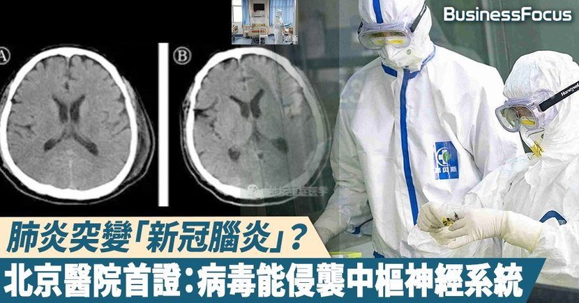 【武漢肺炎】肺炎併發變「新型腦炎」?北京醫院首度證實:病毒能感染中樞神經系統