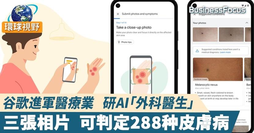 【Google AI】谷歌研發AI皮膚輔助工具  從288種皮膚病解答患者狀況